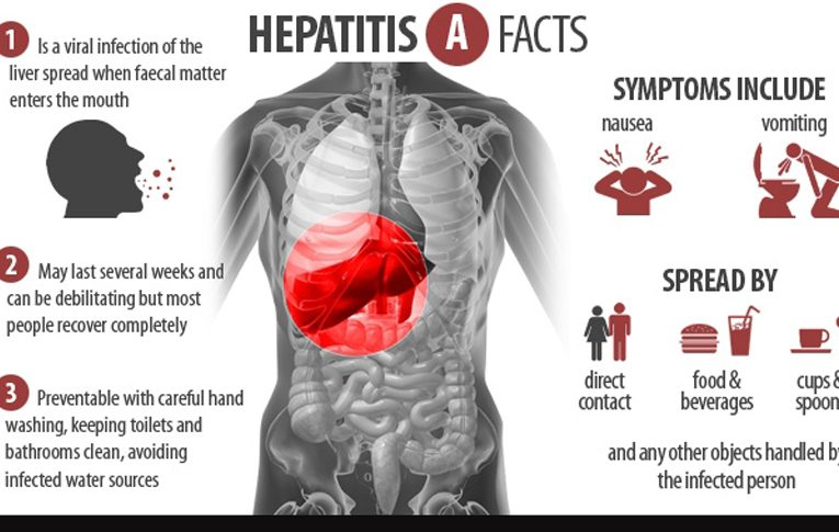 La hepatitis viral